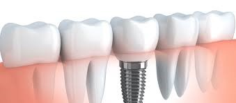 dental implants north york