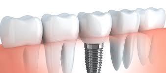 dental implants north york