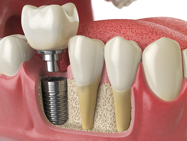 dental-implant-procedure-north-york