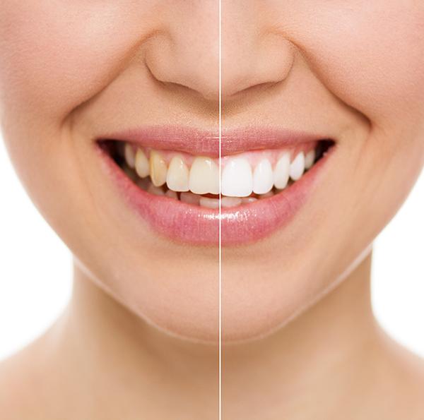 cosmetic-dental-bonding-north-york