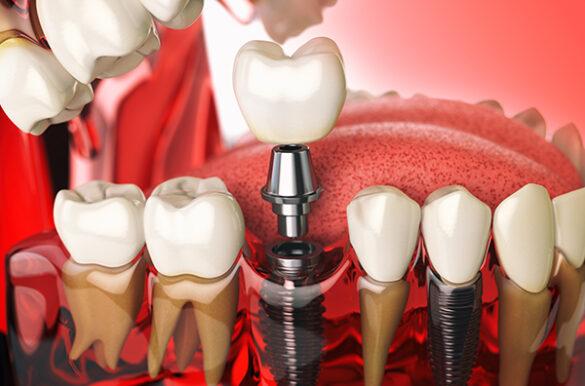 dental-implants-north-york