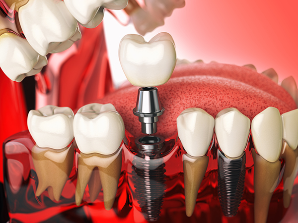 dental-implants-north-york