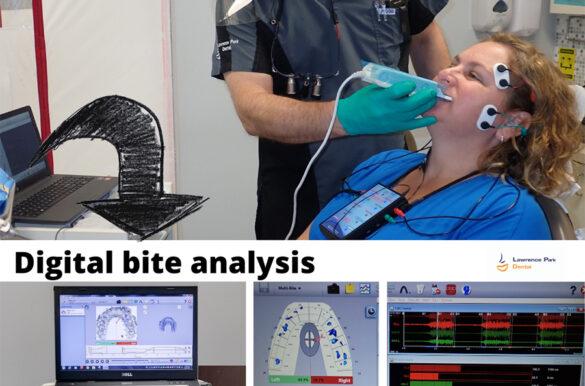 digital-bite-analysis-north-york