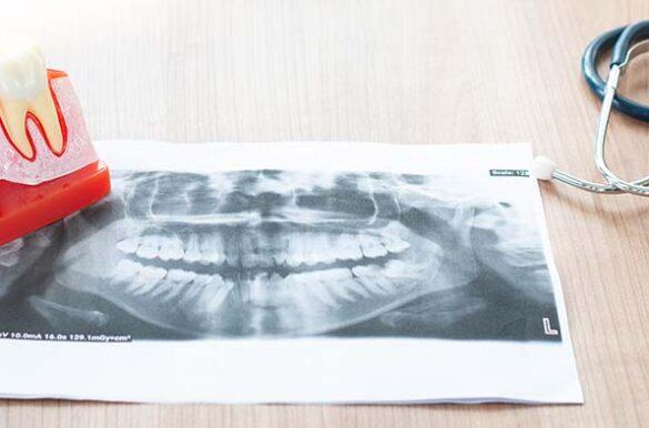benefits-of-dental-implants-north-york